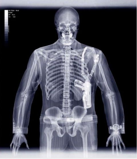 Stunning X-Ray Photographs